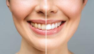 результаты отбеливания зубов zoom фото 1
