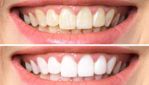 результаты отбеливания зубов zoom фото 2
